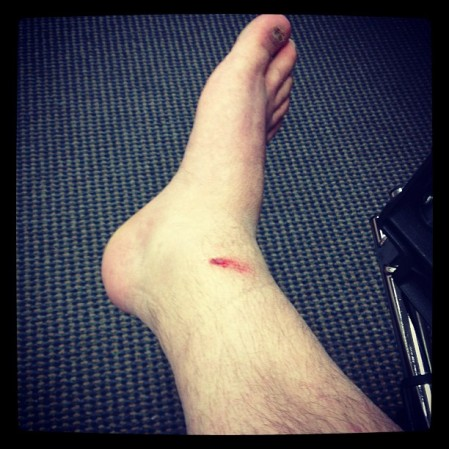 Possibly #broke my #ankle  we also had a baby goat.  - Instagram