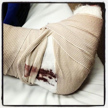 Blood leaking through #broken #leg #wryt #kansas  - Instagram