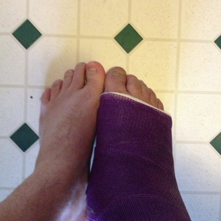 Toes start to match my cast if I don't keep them up. #broken  #purple #toes #wryt  - Instagram