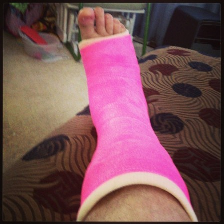 This is what happens when you let your five-year-old daughter pick the color of your cast.  - Instagram